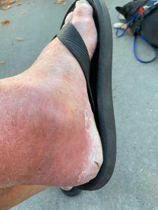 swollen foot - 10-3-19
